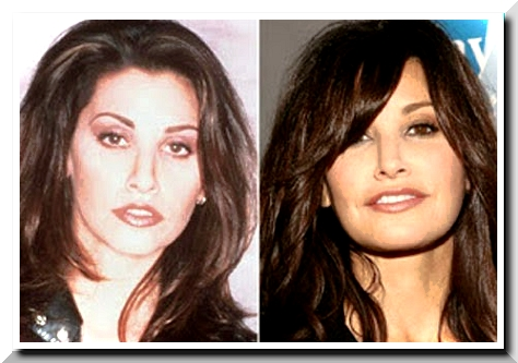 "Gina Gershon Plastic Surgery — this actress go into Hollywood trend ""Plastic Surgery."""