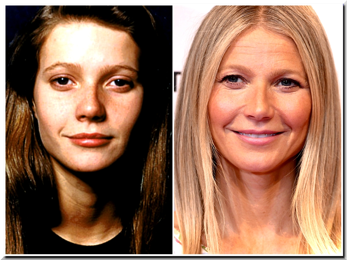 Gwyneth Paltrow Open up Her Botox Injection but Hide Other Surgeries
