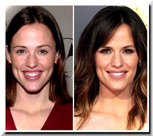 Plastic surgery Creates Jennifer Garner's Hollywood Smile