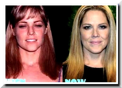 Mary McCormack Plastic surgery — Plastic Surgery has given its Magical Result to McCormack