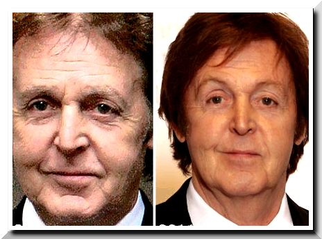 McCartney Plastic Surgery — Obvious Changes, Obvious Plastic Surgery